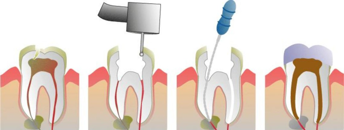 Root-Canal-Therapy-Steps