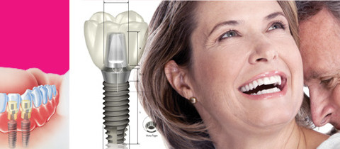 dental implants vancouver,