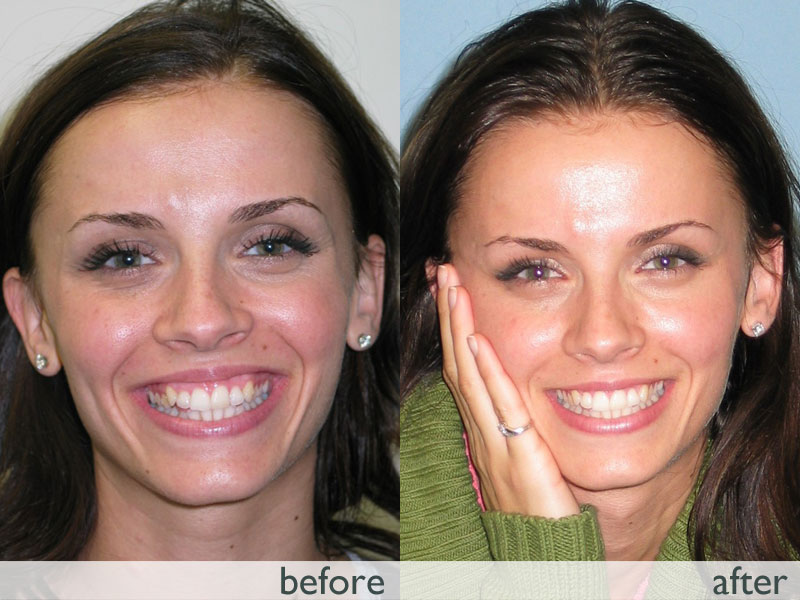 invisalign teeth braces