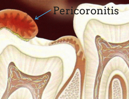 causes of pericoronitis