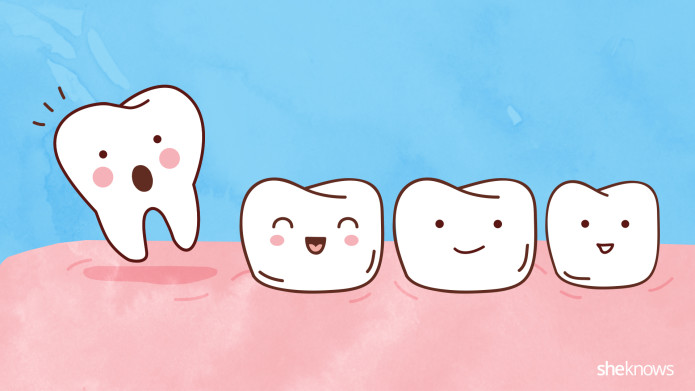 Consequences and causes of tooth loss